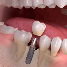 denture-implants3.jpg