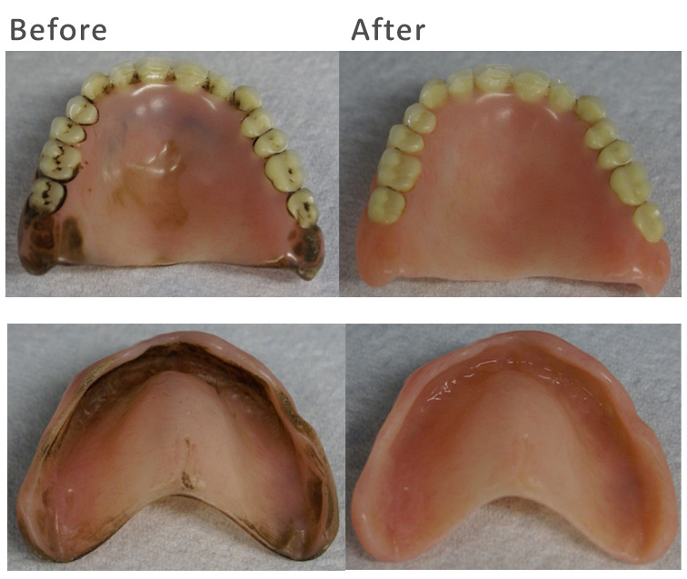 Denture Cleaning Before & After