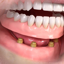 denture-implants1.jpg