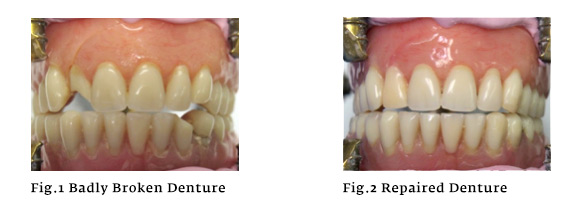 denture-repairs-smilecrafters-staffordshire.jpg